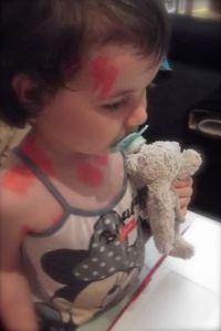 ma fille a la varicelle